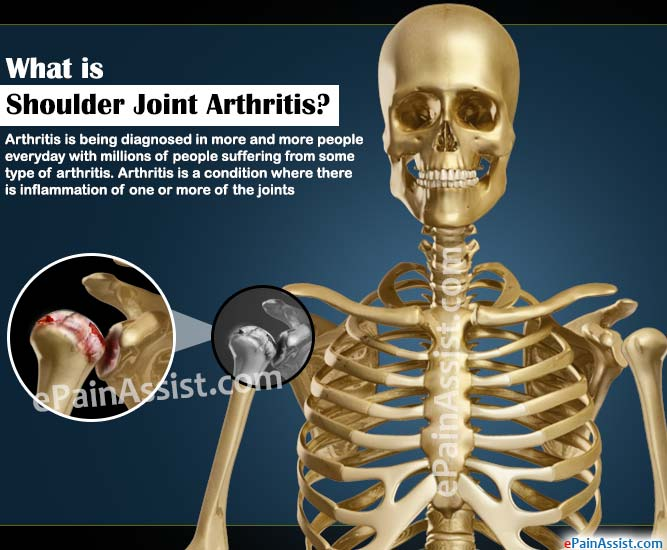 What is Shoulder Joint Arthritis?