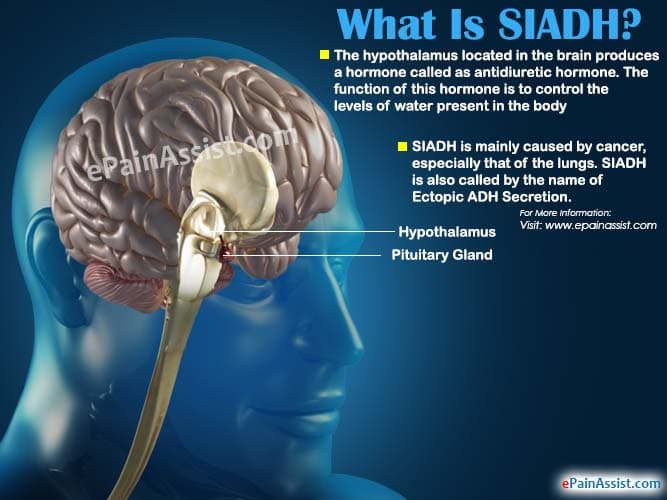 What Is Siadh Or Syndrome Of Inappropriate Antidiuretic Hormone?