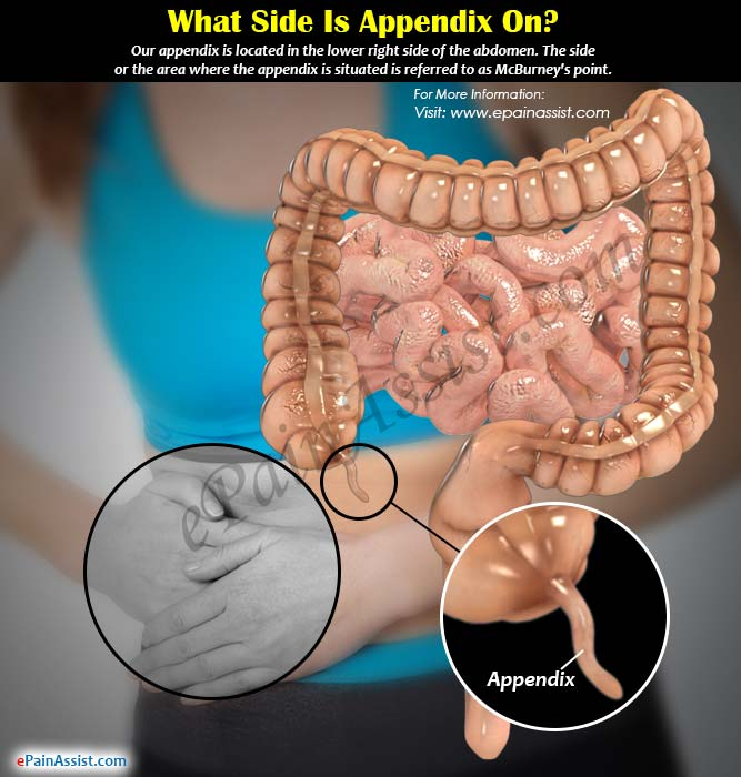 what side is appendix on & what causes it to burst?, Human Body