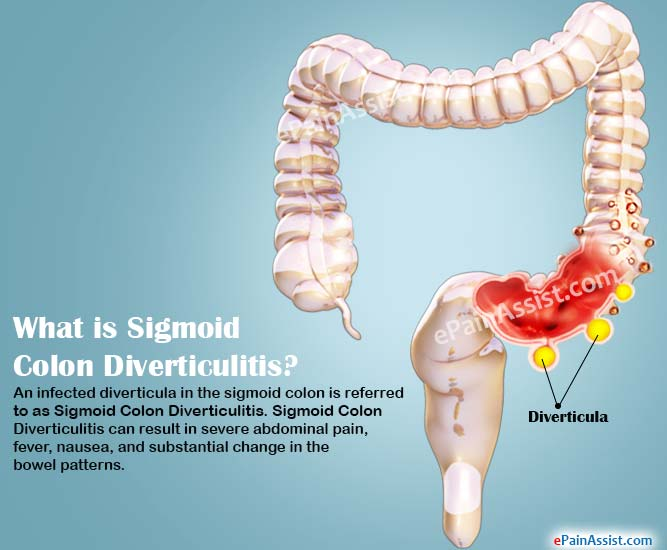 sigmoid colon diverticulitis|causes|symptoms|treatment|diagnosis, Human body