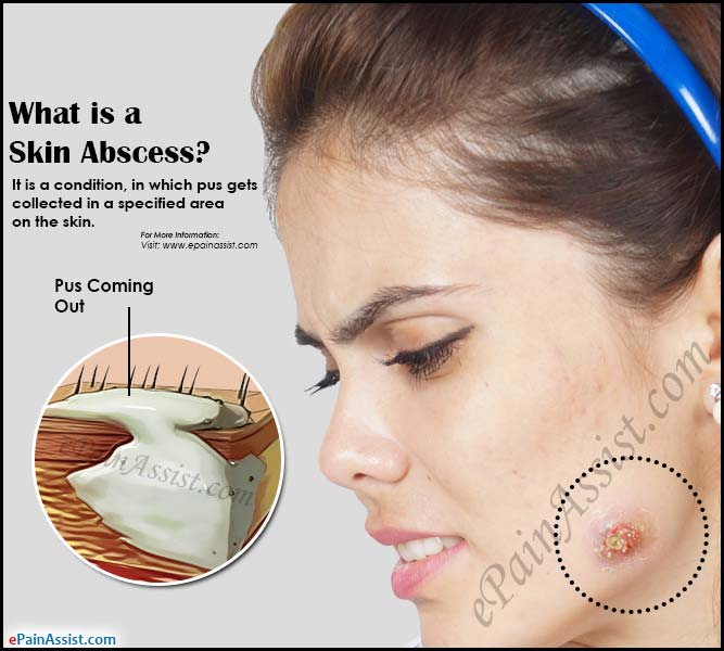 What is a Skin Abscess?