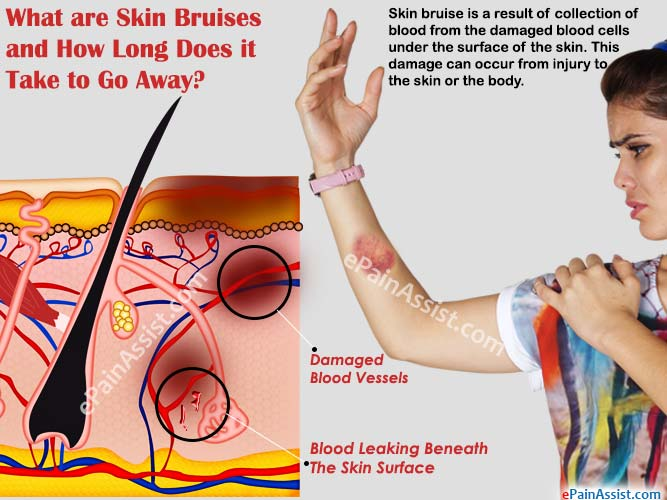 What are Skin Bruises & How Long Does it Take to Go Away|Causes ...