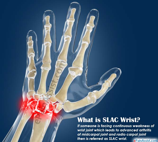What is SLAC Wrist?