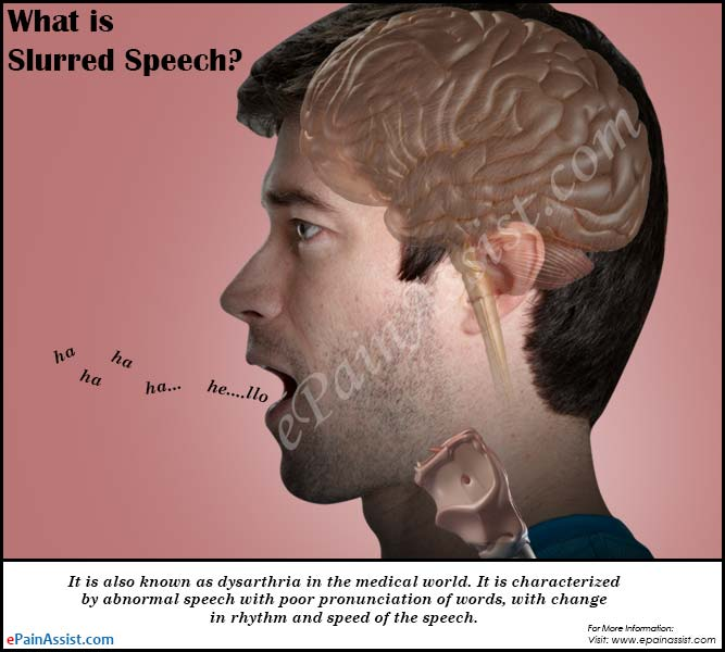 what is slurred speech & how is it treated?, Skeleton