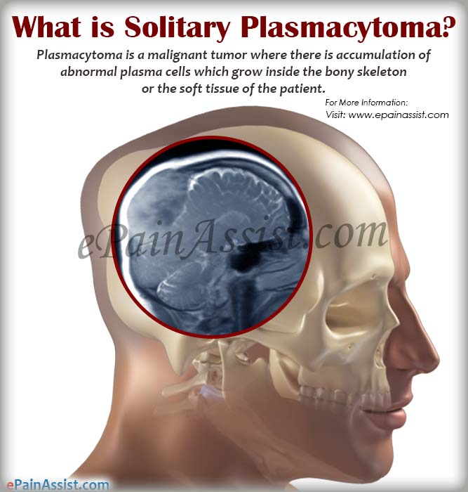 What is Solitary Plasmacytoma?