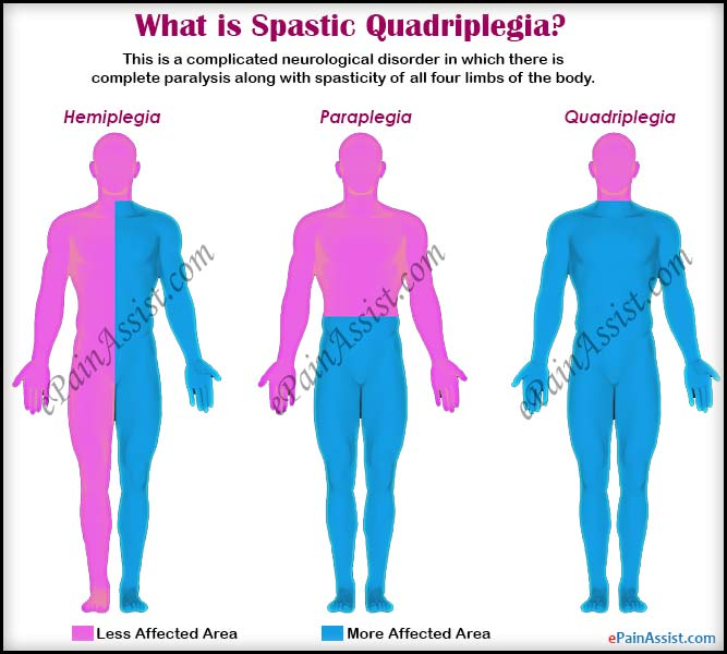 spastic quadriplegia: treatment, complications, symptoms, causes, Skeleton