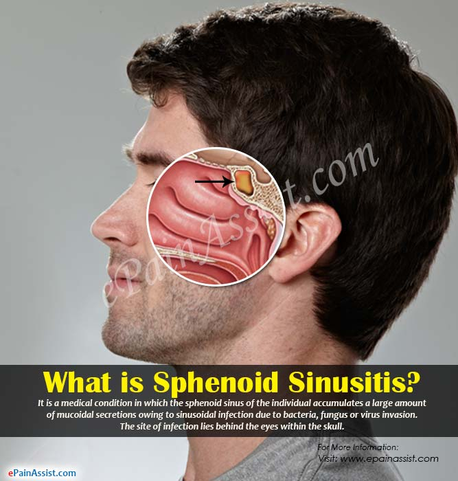 What is Sphenoid Sinusitis?