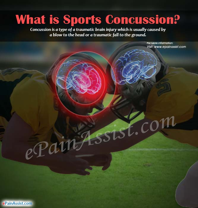 What is Sports Concussion?