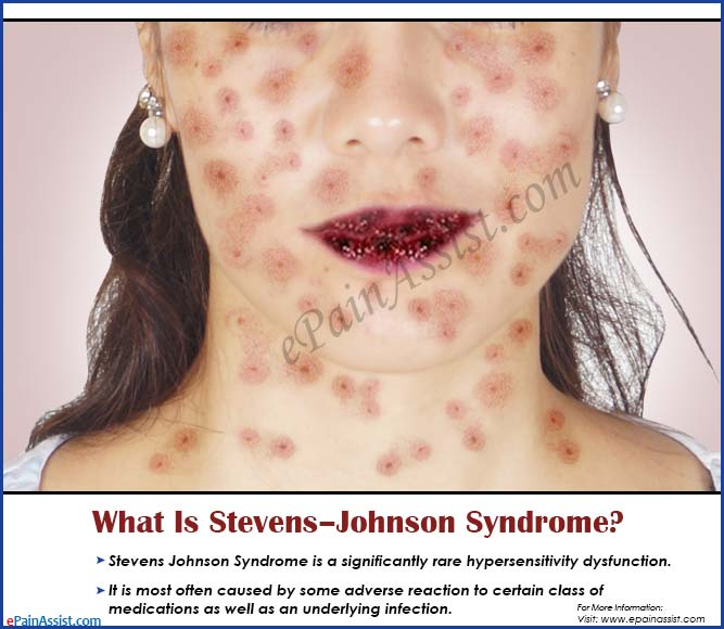 Stevens-Johnson syndrome - Mayo Clinic