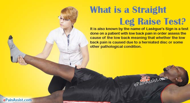 What is a Straight Leg Raise Test?