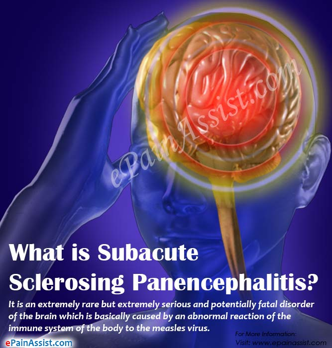 What is Subacute Sclerosing Panencephalitis?