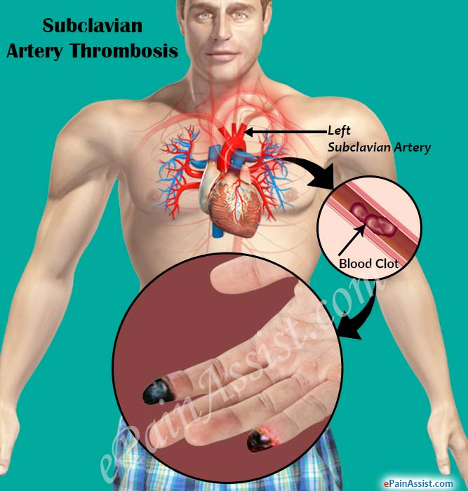 What is Subclavian Artery Thrombosis?