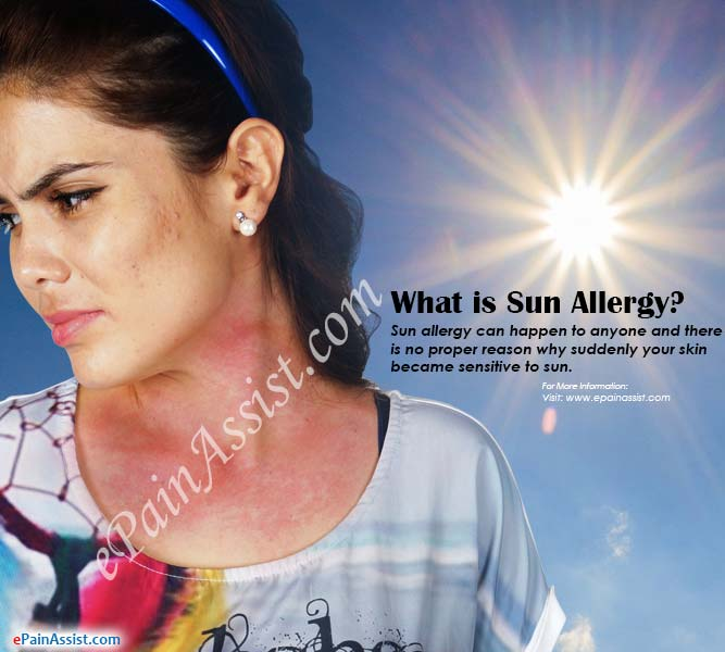 What is Sun Allergy?