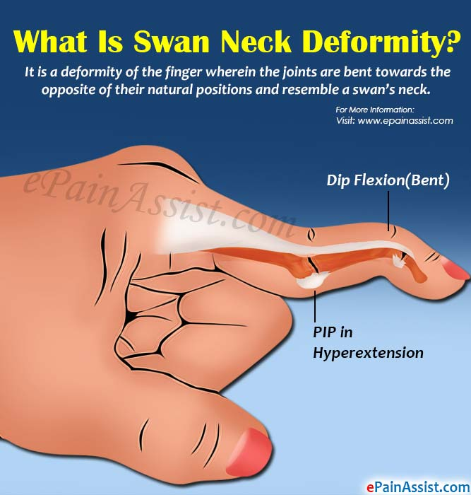 What Is Swan Neck Deformity?