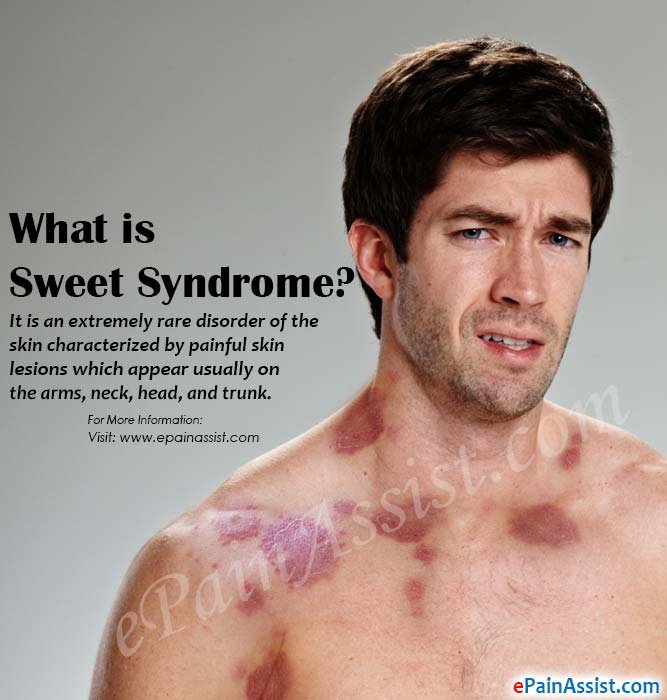 What is Sweet Syndrome?