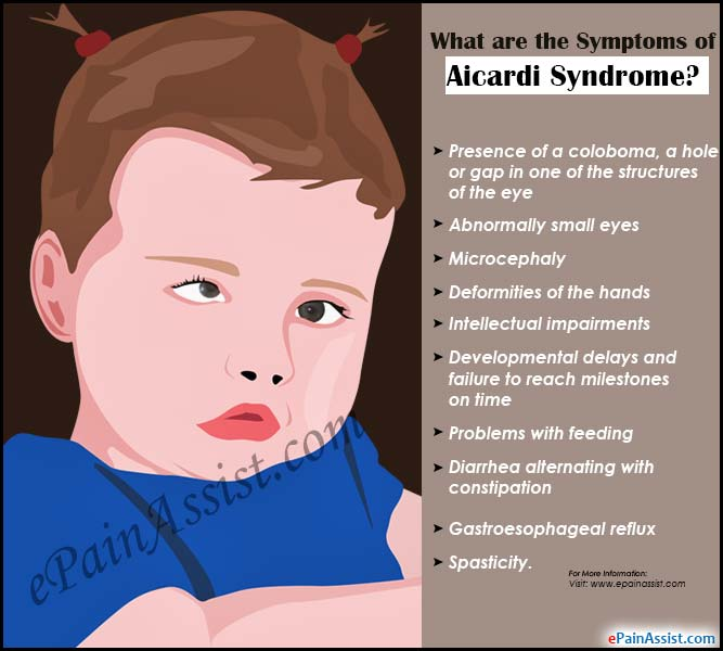 What are the Symptoms of Aicardi Syndrome?