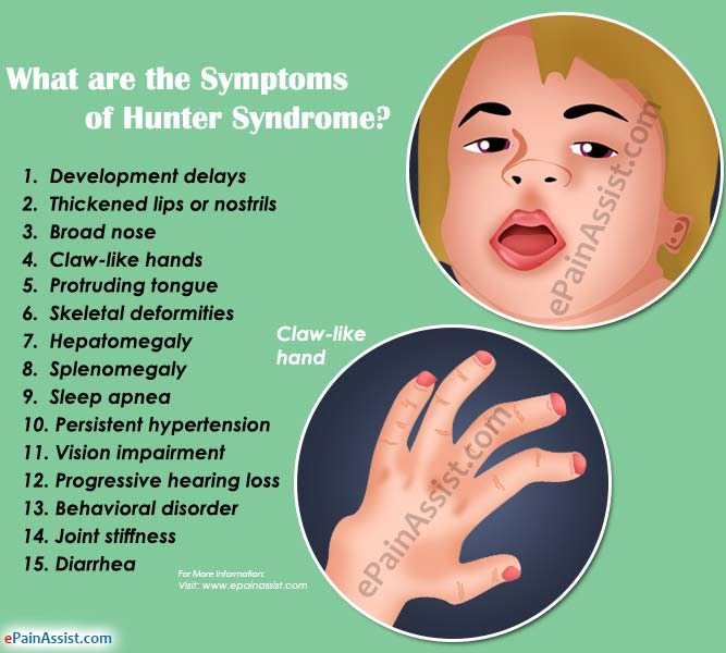 What Are The Symptoms Of Hunter Syndrome?