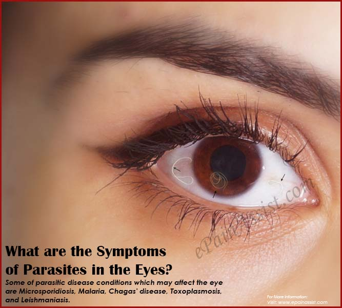 What are the Symptoms of Parasites in the Eyes?