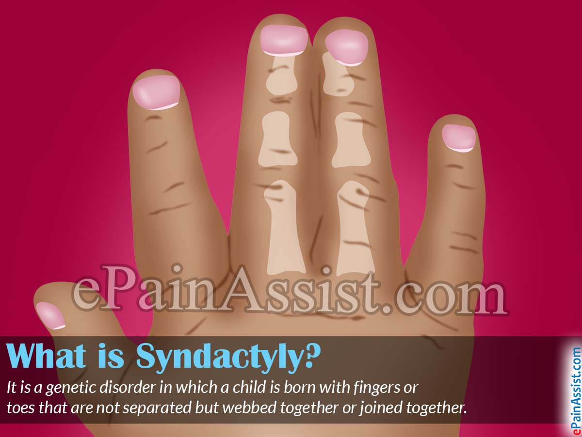 What is Syndactyly?