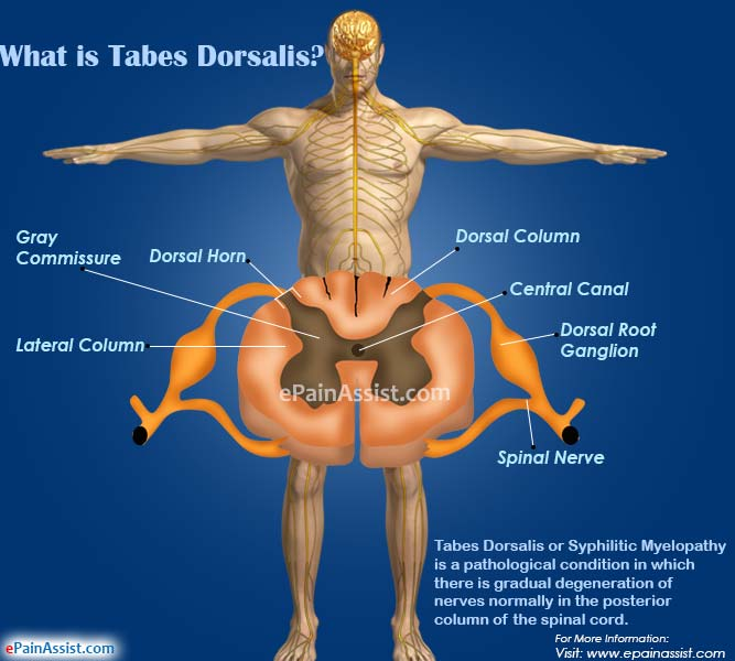 What is Tabes Dorsalis?
