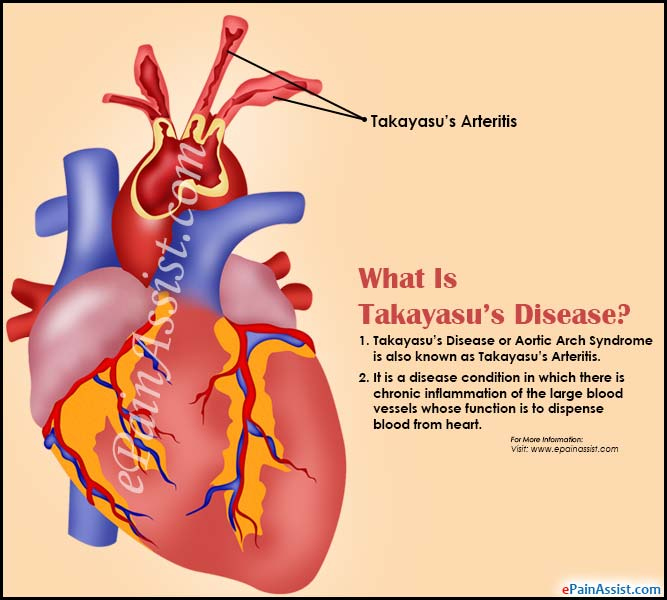 What Is Takayasu's Disease Or Aortic Arch Syndrome?