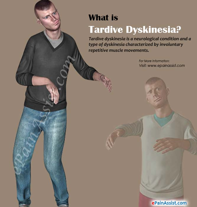 What is Tardive Dyskinesia?