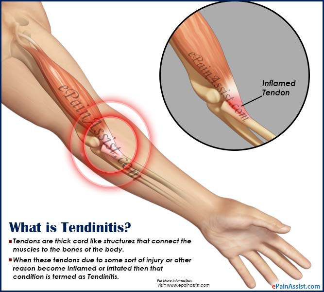 What is Tendinitis?