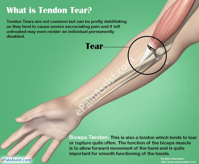 What is Tendon Tear?