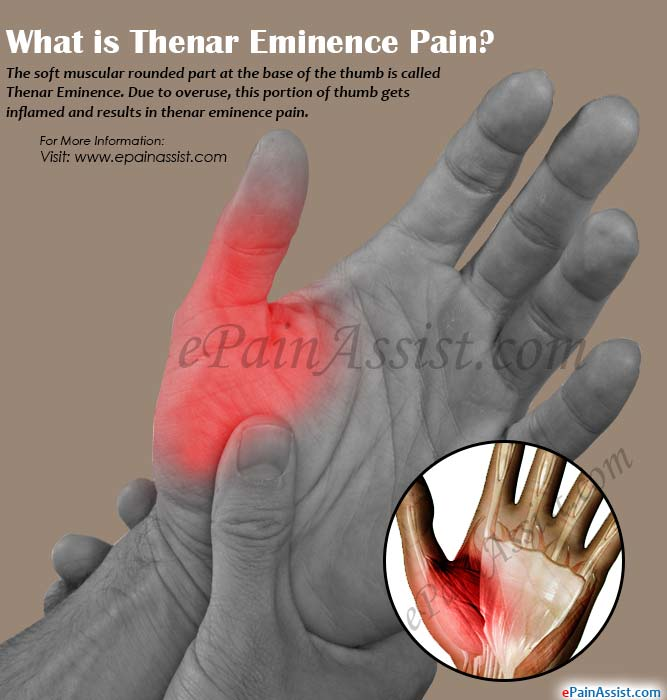 What is Thenar Eminence Pain?