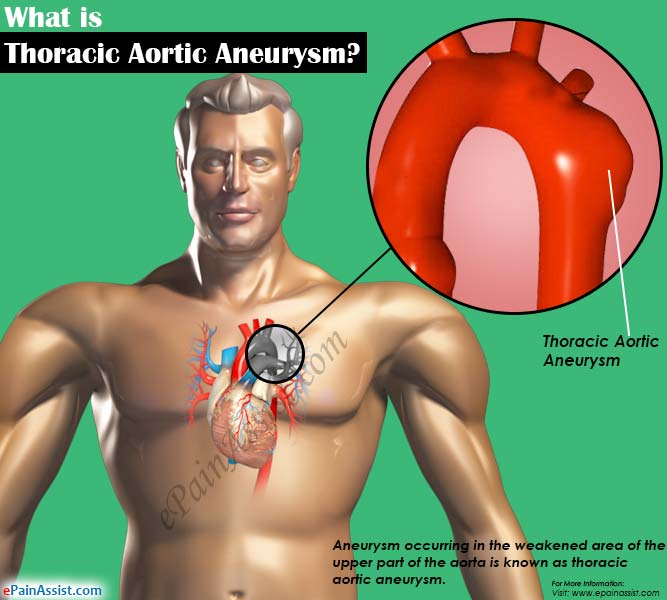 thoracic aortic aneurysm: treatment, home remedies, causes, symptoms, Human Body