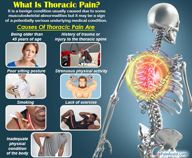 What Is Thoracic Pain?