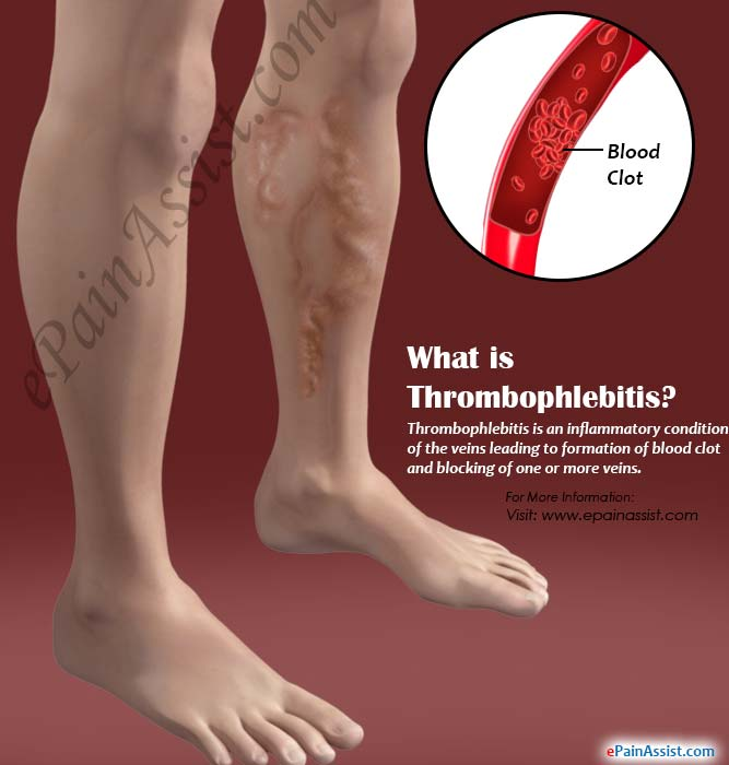 What is Thrombophlebitis & How Can it Be Treated and Prevented?