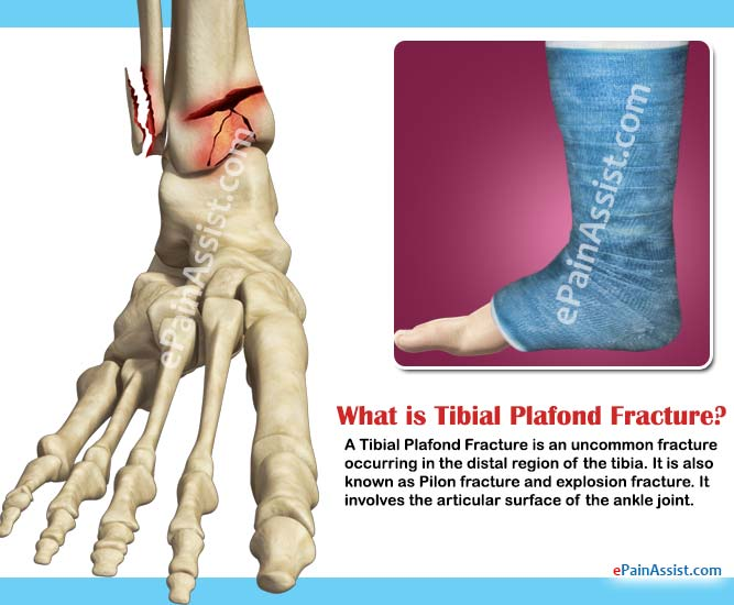 What is Tibial Plafond Fracture?