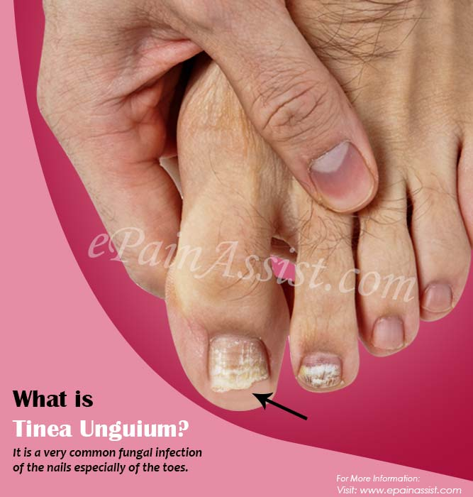 What is Tinea Unguium?
