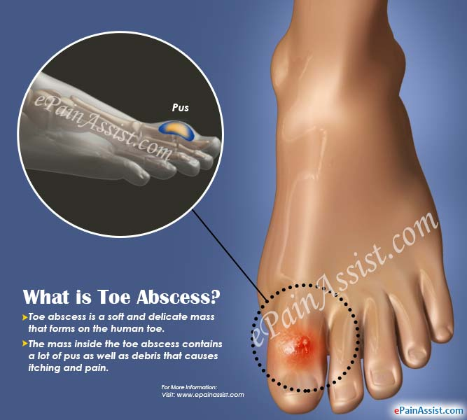 What is Toe Abscess?