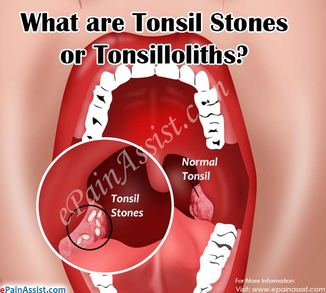 What are Tonsil stones or Tonsilloliths, Know its Treatment