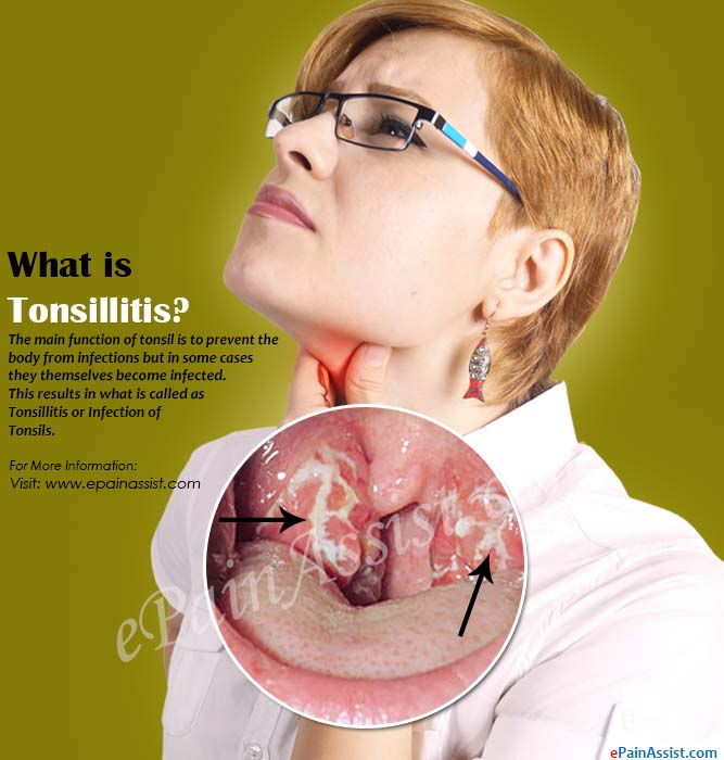 What is Tonsillitis or Infection of Tonsils