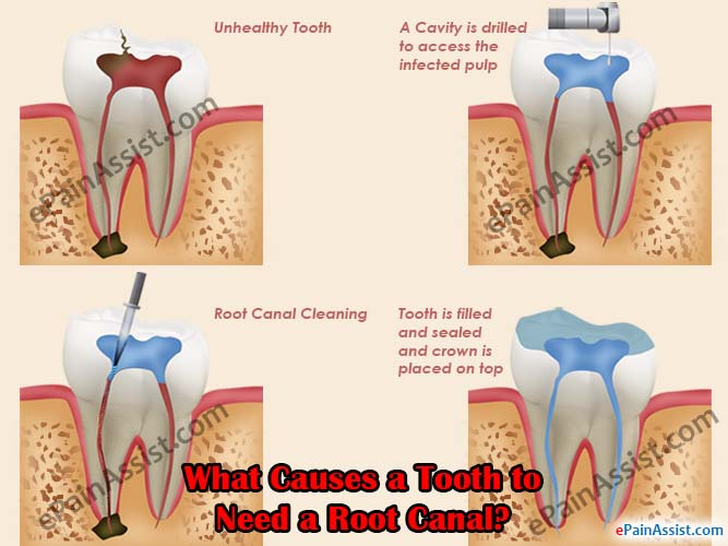 What Causes a Tooth to Need a Root Canal?