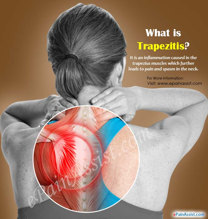 What is Trapezitis?