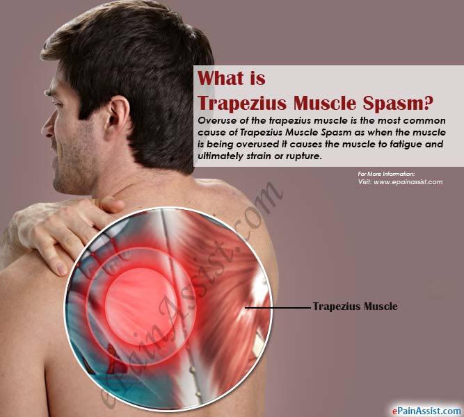 What is Trapezius Muscle Spasm|Causes|Symptoms|Treatment