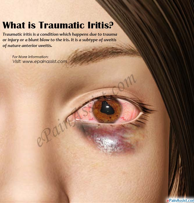What is Traumatic Iritis