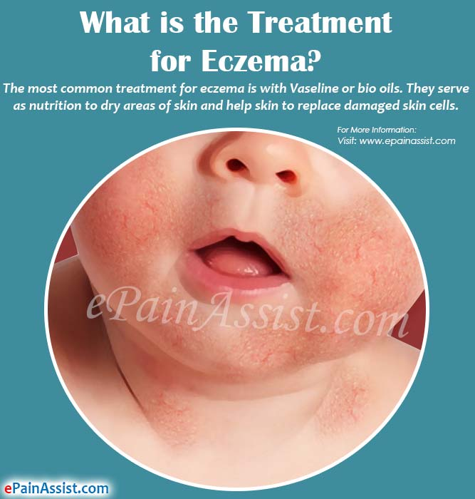 What is the Treatment for Eczema?