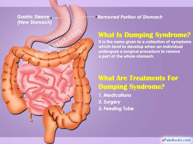 Relieve Dumping Syndrome Symptoms With This Diet Plan