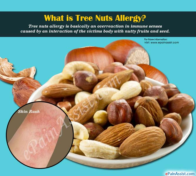 What is Tree Nuts Allergy?