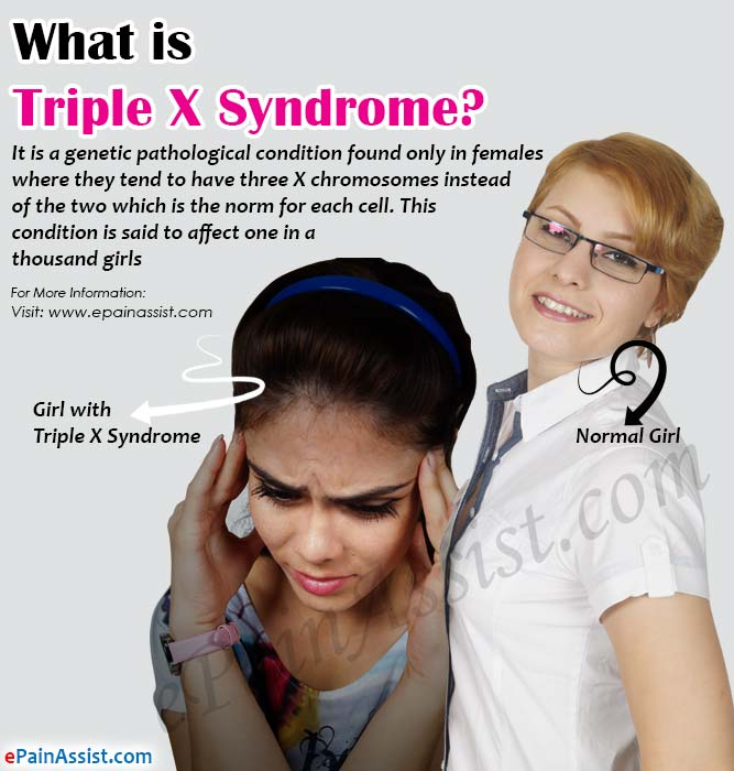 What is Triple X Syndrome?