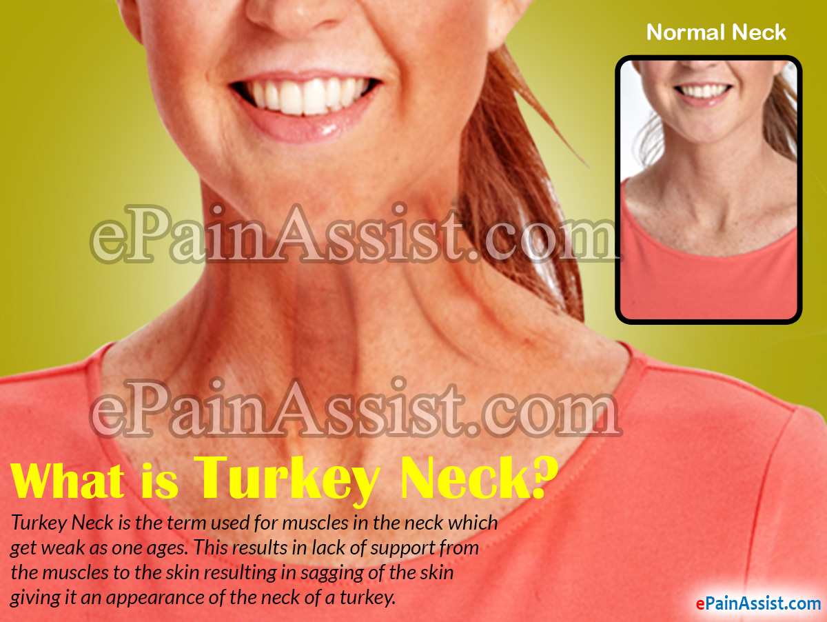 What is Turkey Neck?