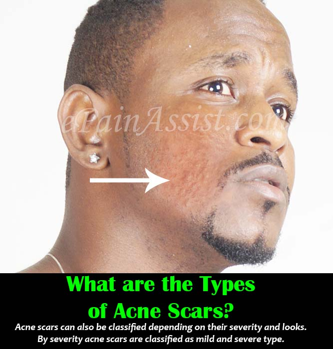 What are the Types of Acne Scars?