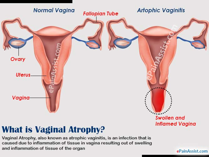 What is Vaginal Atrophy?