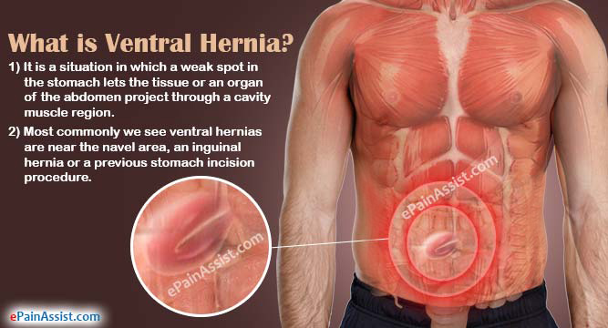 ventral hernia|causes|symptoms|signs|complications|diagnosis, Skeleton
