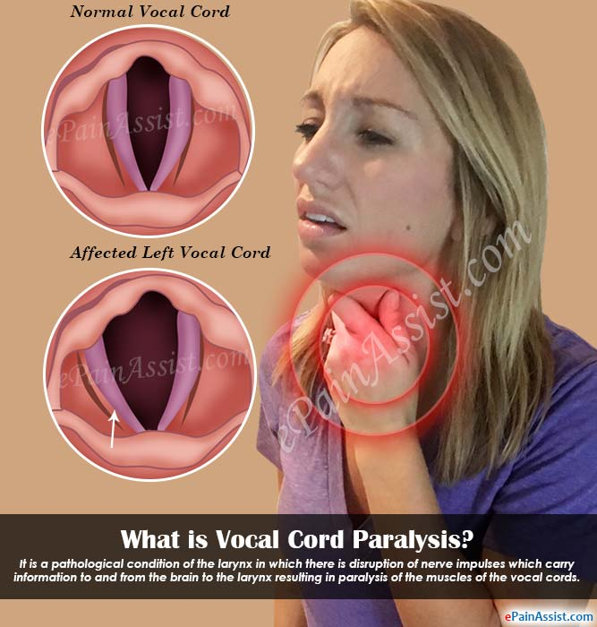 What is Vocal Cord Paralysis?